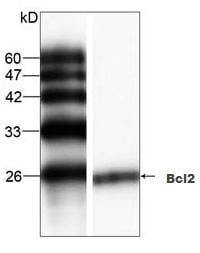 Western blot - Anti-Bcl-2 [9] antibody (ab87435)