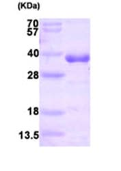 SDS-PAGE - HNMT protein (His tag) (ab87458)
