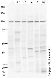 Western blot - Cpt1c antibody (ab87498)