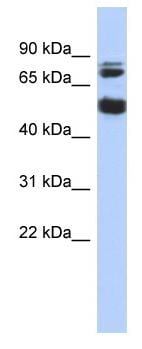 Western blot - Serine/threonine-protein kinase NIM1 antibody (ab87553)