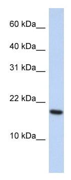 Western blot - ARL5A antibody (ab87567)
