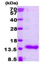 SDS-PAGE - CRABP1 protein (Human) (ab87628)