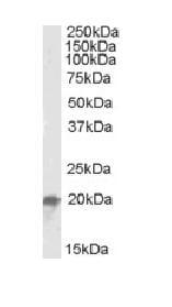 Western blot - NCE2 antibody (ab87640)