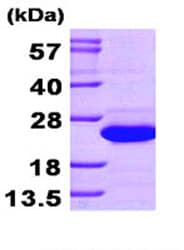 SDS-PAGE - SAT1 protein (His tag) (ab87666)