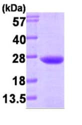 SDS-PAGE - VPS28 protein (Human) (ab87718)