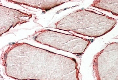 Immunohistochemistry (Formalin/PFA-fixed paraffin-embedded sections) - Anti-Caveolin-3 antibody (ab87770)