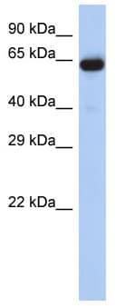 Western blot - LRRTM1 antibody (ab87774)