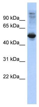 Western blot - FBXL16 antibody (ab87778)