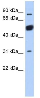 Western blot - CXorf20 antibody (ab87790)