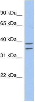 Western blot - ZADH2 antibody (ab87794)