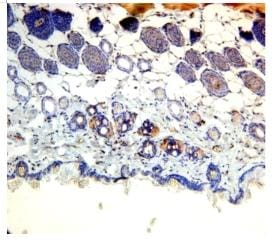 Immunohistochemistry (Formalin/PFA-fixed paraffin-embedded sections) - PNPLA3 antibody (ab87875)