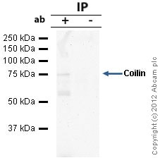 Immunoprecipitation - Anti-Coilin antibody [IH10] (ab87913)