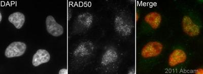 Immunocytochemistry/ Immunofluorescence - Rad50 antibody [20B5] (ab87918)