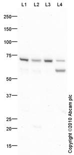 Western blot - Prolactin Receptor antibody (ab87992)