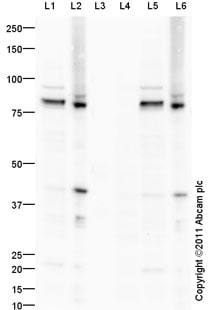 Western blot - PKC epsilon (phospho S729) antibody (ab88241)