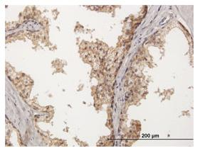 Immunohistochemistry (Formalin/PFA-fixed paraffin-embedded sections) - Nectin 2 antibody (ab88389)