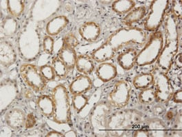 Immunohistochemistry (Formalin/PFA-fixed paraffin-embedded sections) - BSND antibody (ab88518)