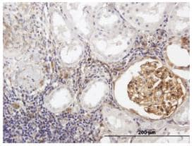 Immunohistochemistry (Formalin/PFA-fixed paraffin-embedded sections) - BST2 antibody (ab88523)