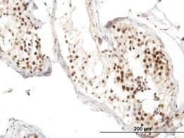 Immunohistochemistry (Formalin/PFA-fixed paraffin-embedded sections) - Rad51 antibody (ab88572)