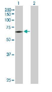 Western blot - PAPSS2 antibody (ab88609)