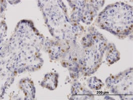Immunohistochemistry (Formalin/PFA-fixed paraffin-embedded sections) - ORC6L antibody (ab88686)