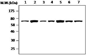 Western blot - NF2 / Merlin antibody [AF1G4] (ab88957)