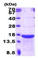 SDS-PAGE - STMN2 protein (Human) (ab89354)