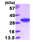 SDS-PAGE - Carbonic Anhydrase I protein (His tag) (ab89359)