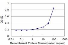 ELISA - EMAP II antibody (ab89506)