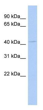 Western blot - NPR2L antibody (ab89722)