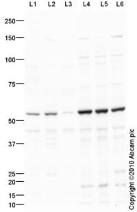 Western blot - MMP8 antibody (ab89834)
