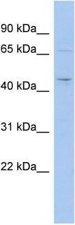 Western blot - MGC33407 antibody (ab89850)