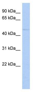 Western blot - ZNF597 antibody (ab89959)