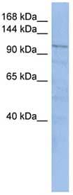 Western blot - TRAK1 antibody (ab89962)
