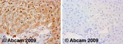Immunohistochemistry (Formalin/PFA-fixed paraffin-embedded sections) - alpha 1 Antitrypsin antibody (ab9373)