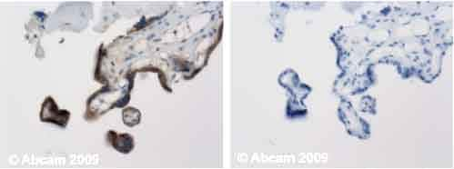 Immunohistochemistry (Formalin/PFA-fixed paraffin-embedded sections) - hCG antibody (ab9376)