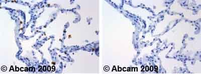 Immunohistochemistry (Formalin/PFA-fixed paraffin-embedded sections) - Glycophorin A antibody [JC159] (ab9520)