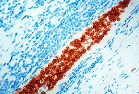 Immunohistochemistry (Formalin/PFA-fixed paraffin-embedded sections) - Anti-Glycophorin A antibody [JC159] (ab9520)