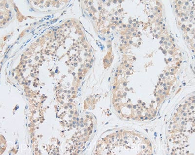 Immunohistochemistry (Formalin/PFA-fixed paraffin-embedded sections) - Anti-IL13 antibody (ab9576)