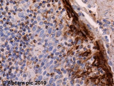 Immunohistochemistry (Formalin/PFA-fixed paraffin-embedded sections) - Macrophage Inflammatory Protein 3 alpha antibody (ab9829)