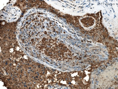 Immunohistochemistry (Formalin/PFA-fixed paraffin-embedded sections) - Anti-CXCL11 antibody (ab9955)