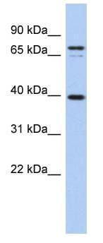 Western blot - MS4A14 antibody (ab90010)