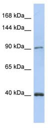 Western blot - DNA Polymerase Kappa/POLK antibody (ab90020)