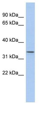 Western blot - ZDHHC24 antibody (ab90054)
