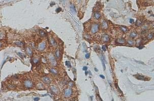 Immunohistochemistry (Formalin/PFA-fixed paraffin-embedded sections) - Cytokeratin 7 antibody (ab90083)