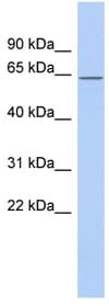 Western blot - RNPC3 antibody (ab90090)