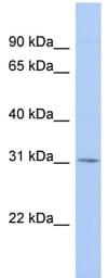 Western blot - TSPAN12 antibody (ab90091)