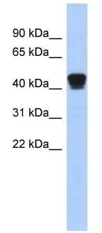 Western blot - TXNDC4 antibody (ab90101)