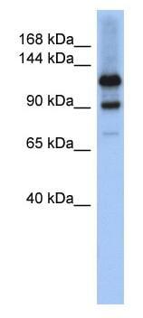 Western blot - HIPK1 antibody (ab90103)