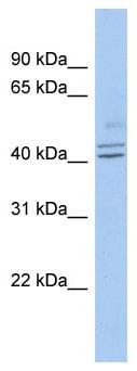 Western blot - PROCA1  antibody (ab90126)